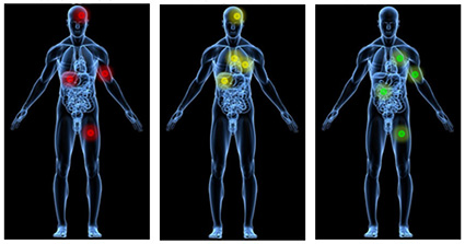 Analysis of metastatic prostate cancers suggests treatment