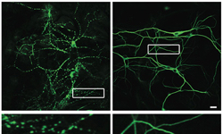 Prion study looks at nerve cell damage in brain